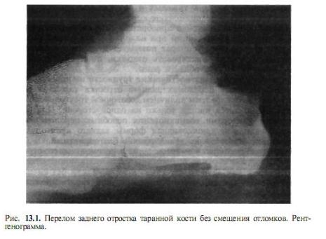 Перелом пяточной кости без смещения