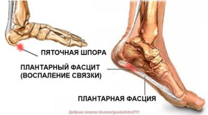 Рентгенотерапия1