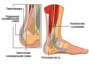 ахиллобурсит3