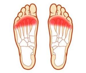 боль между пяткой и носком1