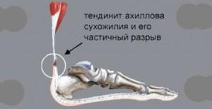 боль между пяткой и носком2