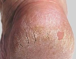Трещины на пятках у женщин