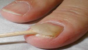 Народные средства от грибка ногтей3