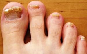 грибок ногтей1