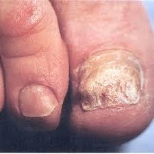 грибок ногтей6