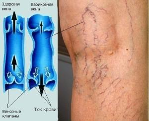 лечение варикоза вен на ногах1