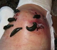 лечение варикоза вен на ногах2