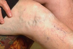 лечение варикоза вен на ногах3