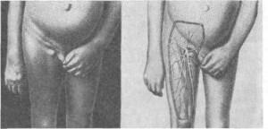 Варикоз ступней ног5