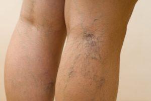 лечение варикоза на ногах в домашних условиях1