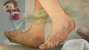 потливость ног1