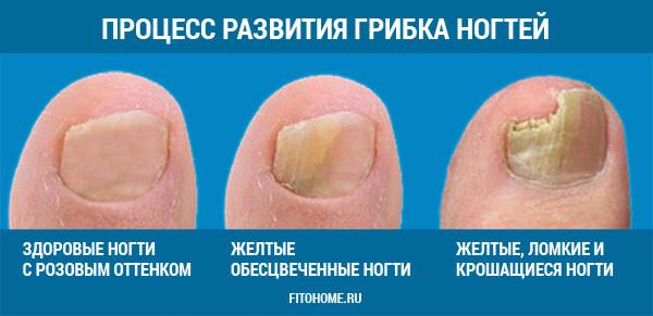 как лечить грибок ногтей