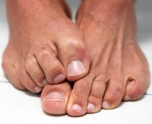 как лечить грибок ногтей1