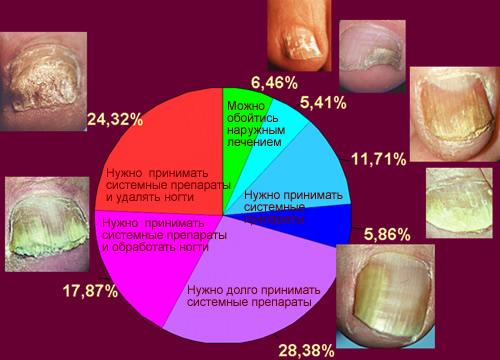 как лечить грибок ногтей2