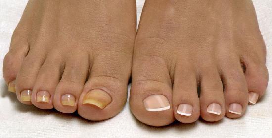 как лечить грибок ногтей3