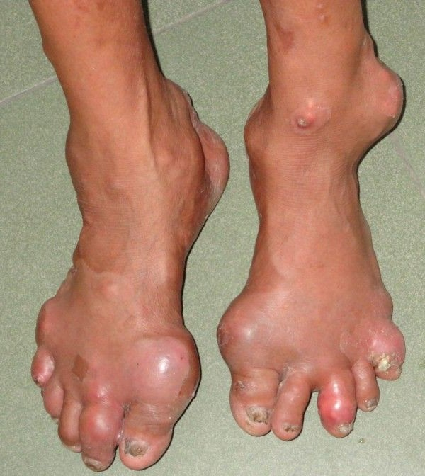 podagra-v-nogah
